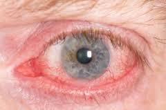 Augentropfen für Allergiker