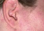 Concealer Allergie im Gesicht