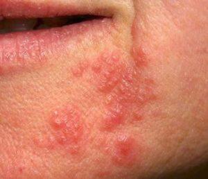 Allergie Hautausschlag im Gesicht