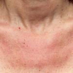 Kontaktallergie Symptome Hals