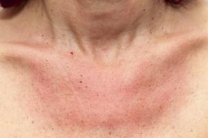Sonnenallergie Bilder Dekoltee Hautausschlag Hautrötung