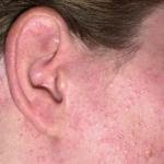 Allergischer Hautausschlag am Ohr und im Gesicht zb. durch Schmuck.