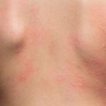 Latex Frucht Syndrom Kreuzallergie Hautausschlag Rücken