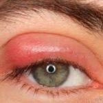 Allergische Symptome geschwollene Augenlieder