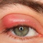 Ambrosia Pollen Allergie Auge
