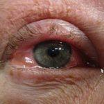 Ahorn Allergie Symptome Auge