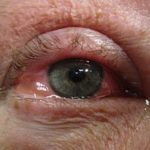 Eibe Allergie Symptome Auge