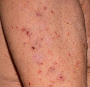 Krätze Allergie Arm